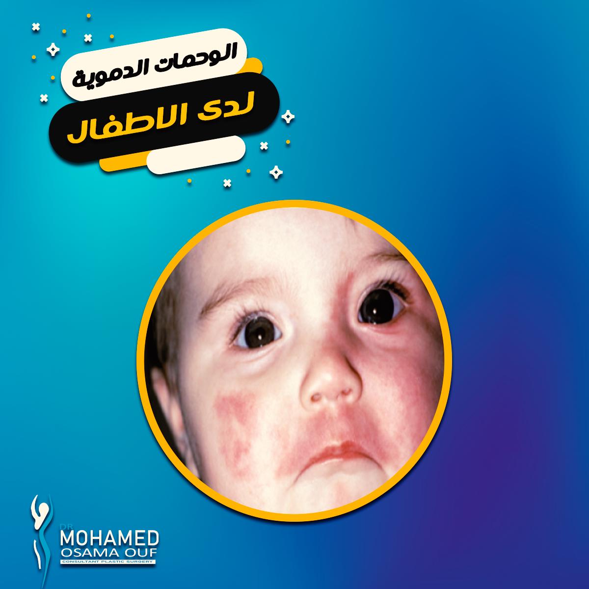 علاج-الوحمات-الدموية-للأطفال